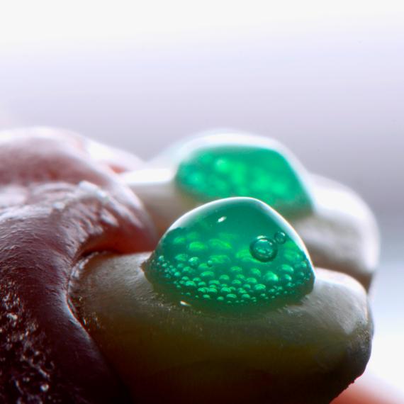 Facetas Dentárias: da correção de pequenas imperfeições à transformação total.
