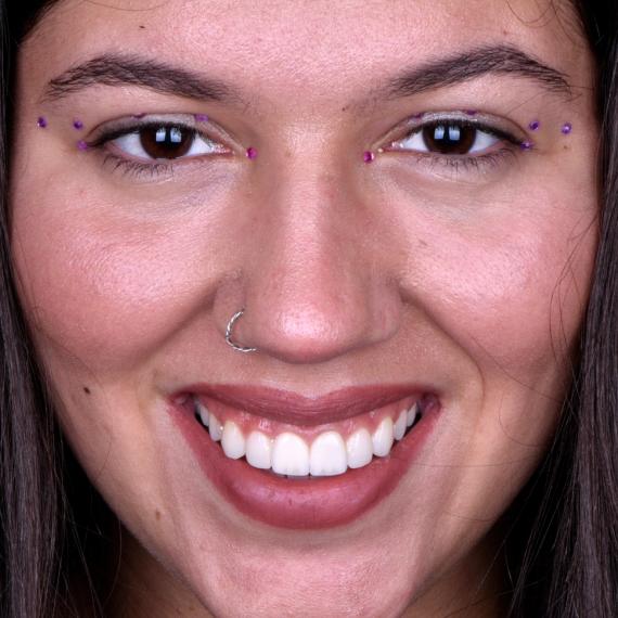 Como corrigir um sorriso gengival?