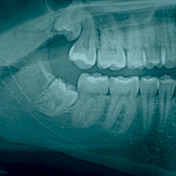 Mitos e verdades sobre dentes do siso